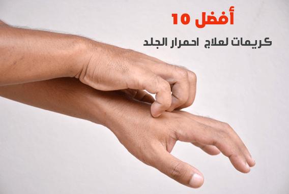 أفضل 10 كريمات لعلاج احمرار الجلد