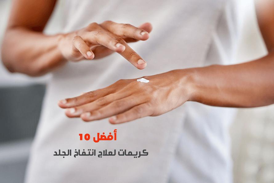 أفضل 10 كريمات لعلاج انتفاخ الجلد