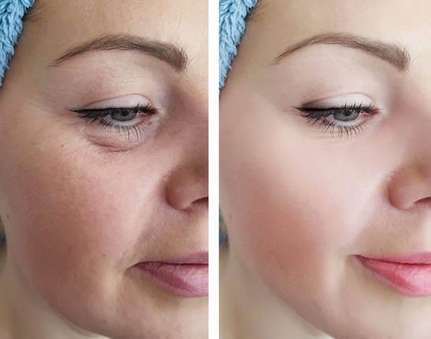 تقليل الانتفاخ تحت العينين
