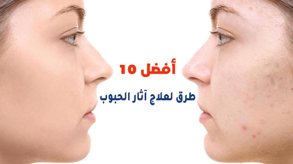 أفضل 10 طرق لعلاج آثار البثور