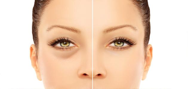 لتقليل الانتفاخات تحت العينين