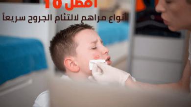 أفضل 10 أنواع مرهم لالتئام الجروح سريعاً