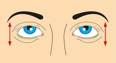 تمرين صعود و هبوط العين
